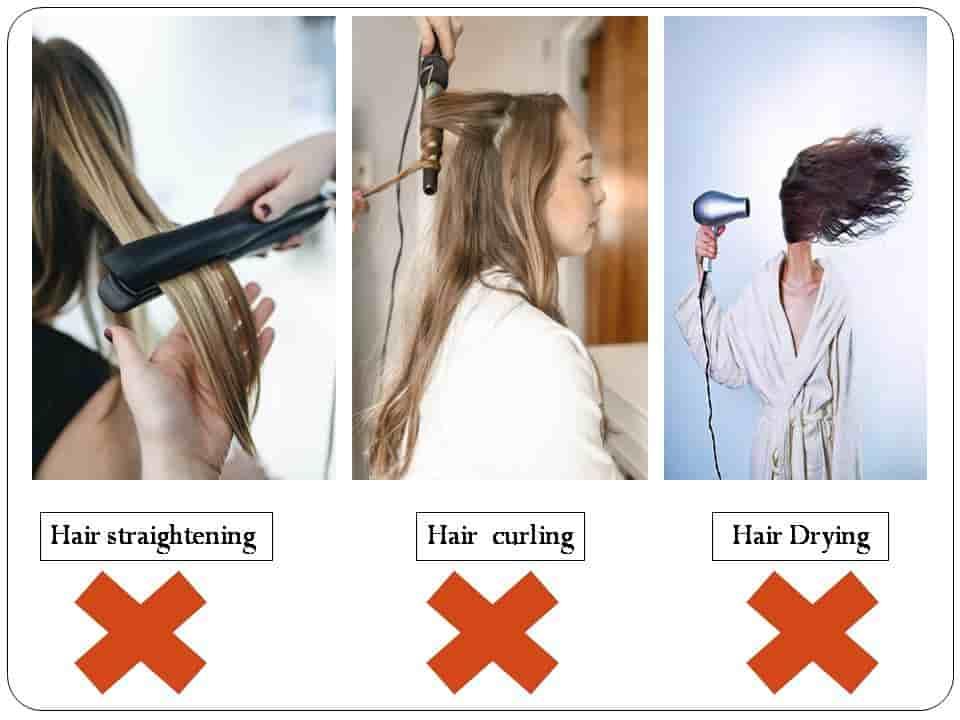 बाल क्यों झड़ते हैं